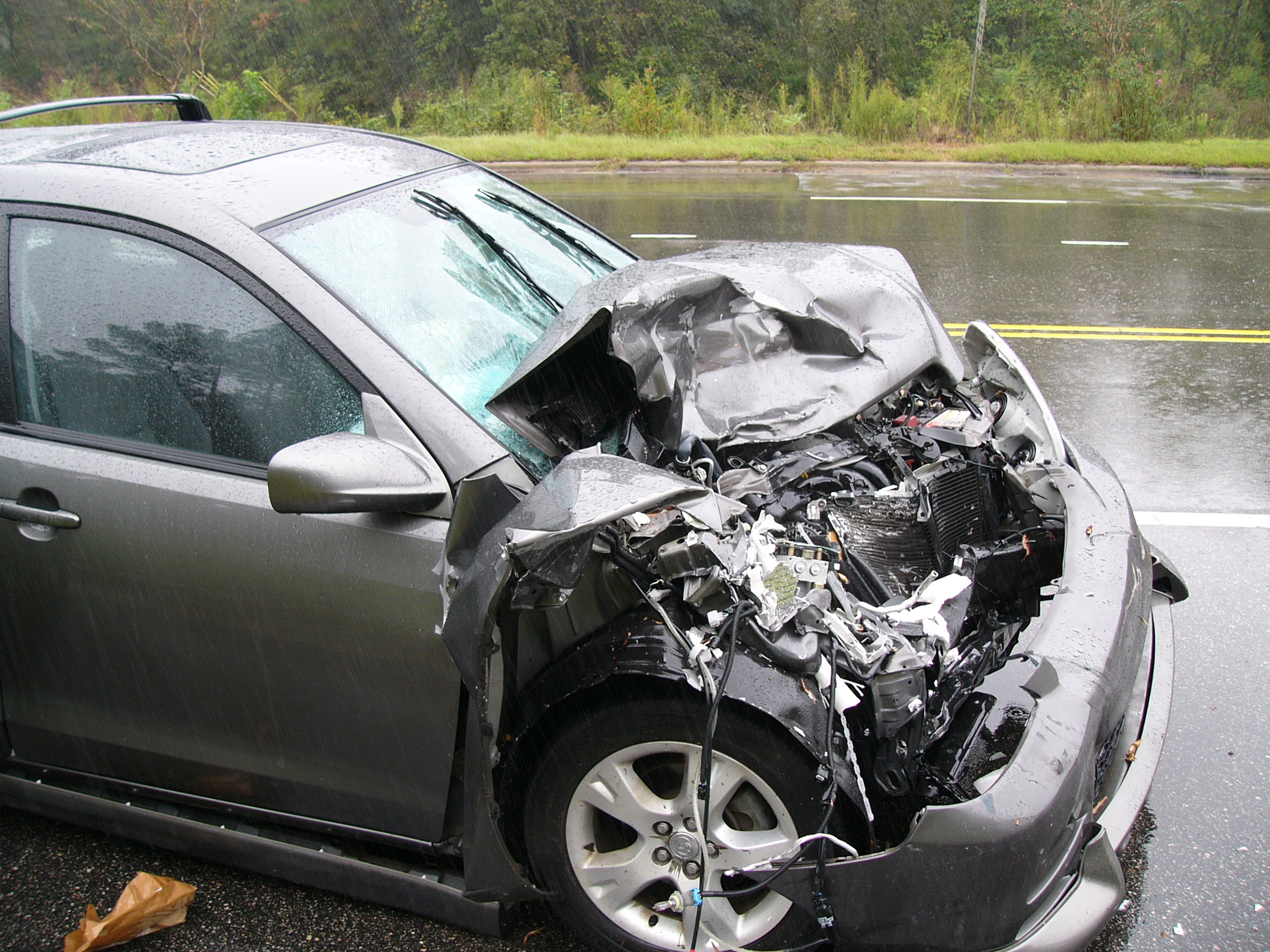can a car accident cause retrolisthesis When these discs are compromised, the bones of the spine lose their place,  sometimes pressing on the nerve, which can cause an auto accident victim a  great.